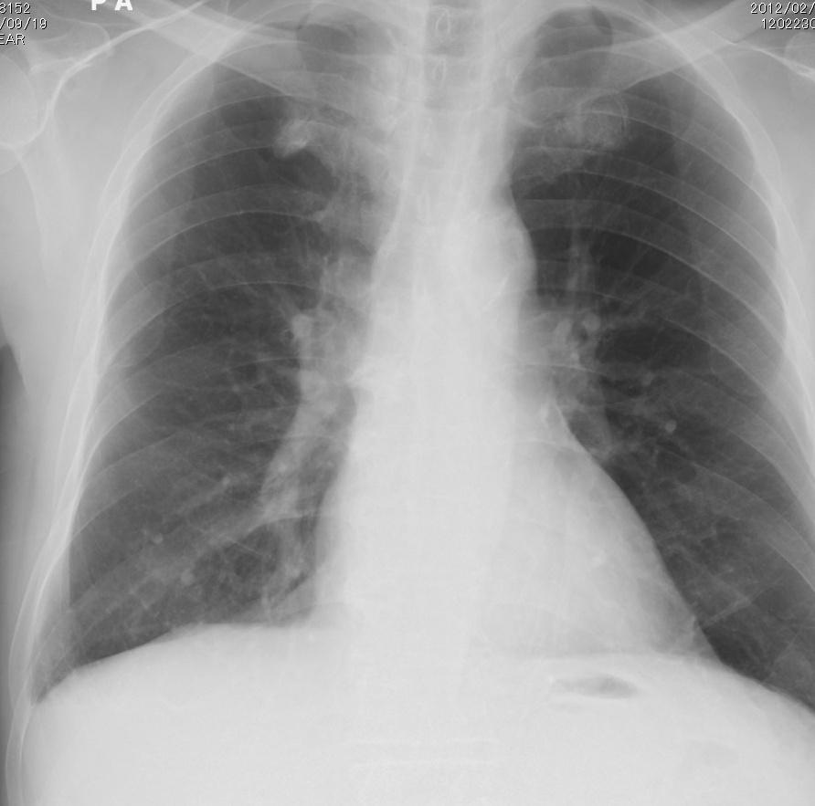 肺動脈瘤CR