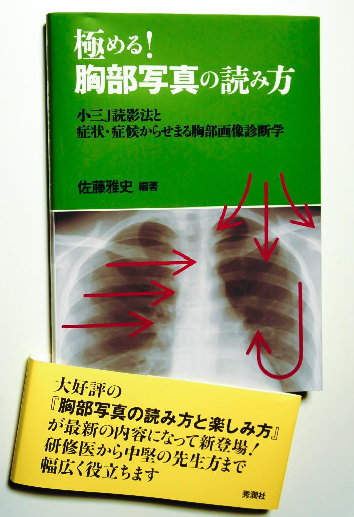 極める!胸部写真の読み方